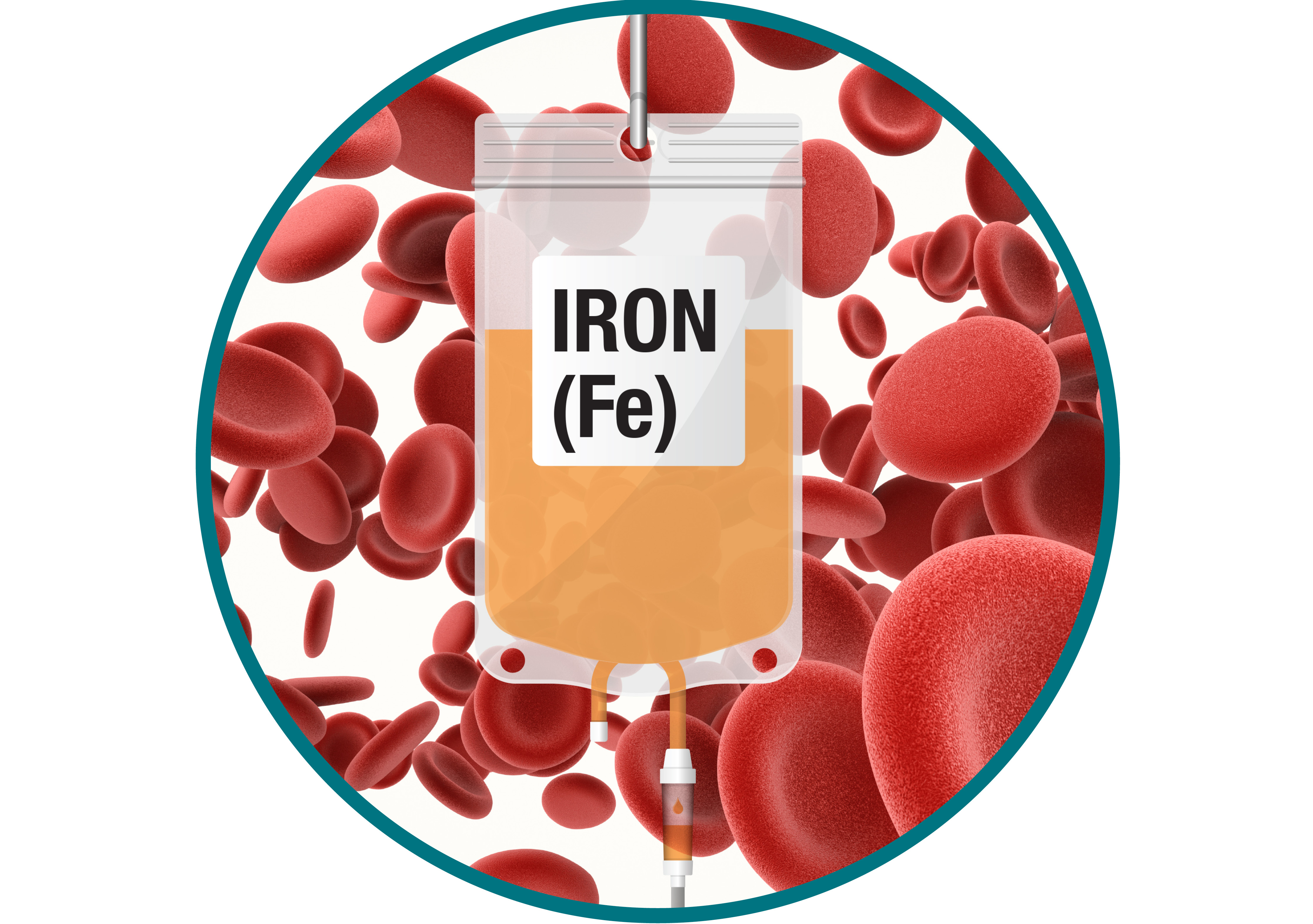 Iron<br>Infusion